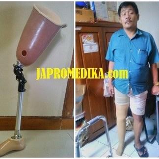 Kaki Palsu Atas Lutut Import