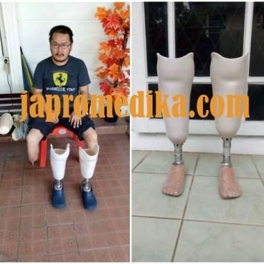 Kaki Palsu Bawah Lutut Bilateral