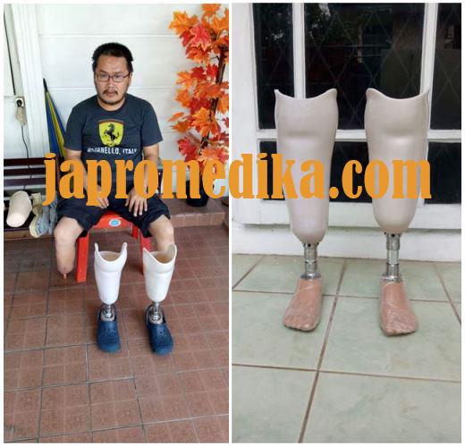 Kaki Palsu Bawah Lutut Single Axis Bilateral - Pasien Tangerang 1
