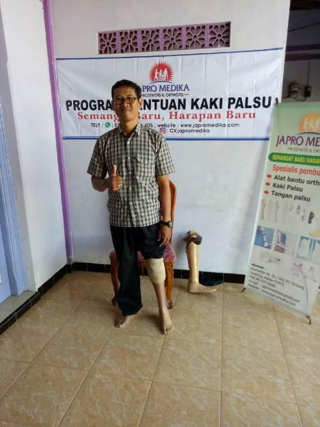 Pemasangan Bantuan Kaki Palsu Gratis Bawah Lutut 3