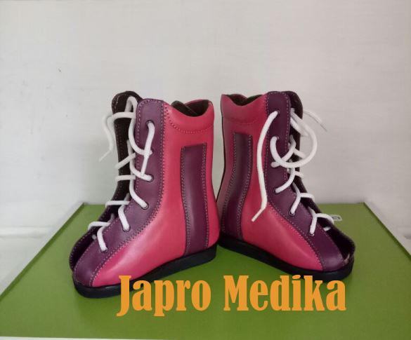 Sepatu Koreksi Untuk Flat Foot - Pasien di Bekasi 1