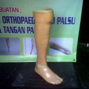 Kaki Palsu Jenis Standart Bawah Lutut