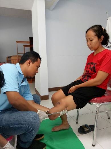 Program Kaki Palsu Gratis Bersama IZI Yogyakarta 10