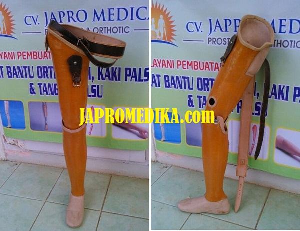 Kaki Palsu Atas Lutut Standar