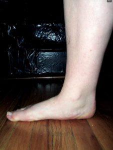 telapak kaki flat
